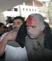 gaza_massacre_00335